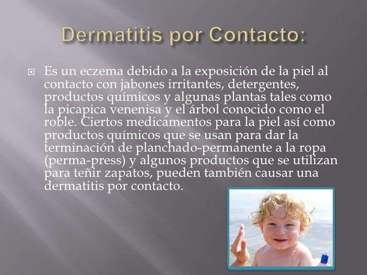 Dermatitis por Contacto:<br />Es un eczema debido a la exposición de la piel al contacto con jabones irritantes, detergent...