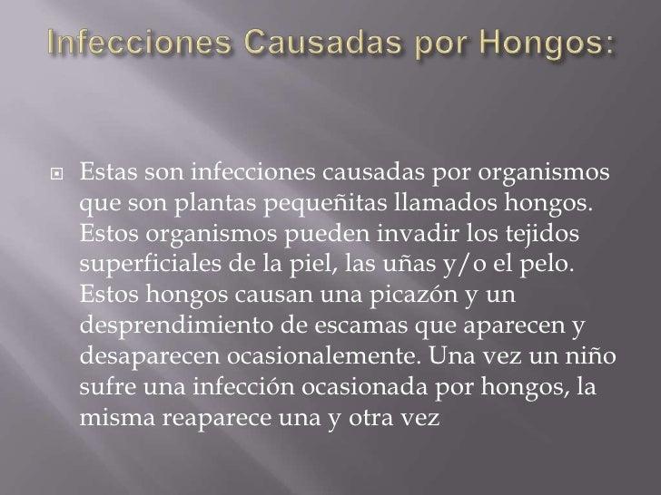 Infecciones Causadas por Hongos: <br />Estas son infecciones causadas por organismos que son plantas pequeñitas llamados h...