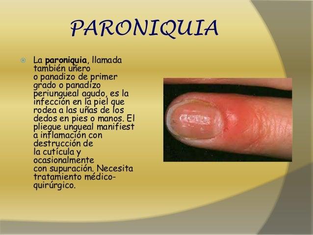 Al tratamiento del hongo de las uñas después de la desaparición de la uña