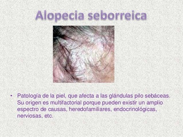 Alteraciones y afecciones del cabello