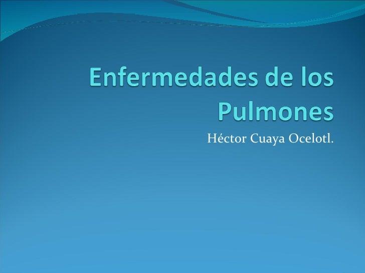 Héctor Cuaya Ocelotl.