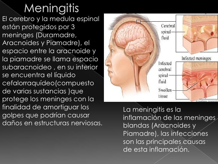 Enfermedades del Sistema Nervioso Grupo 8