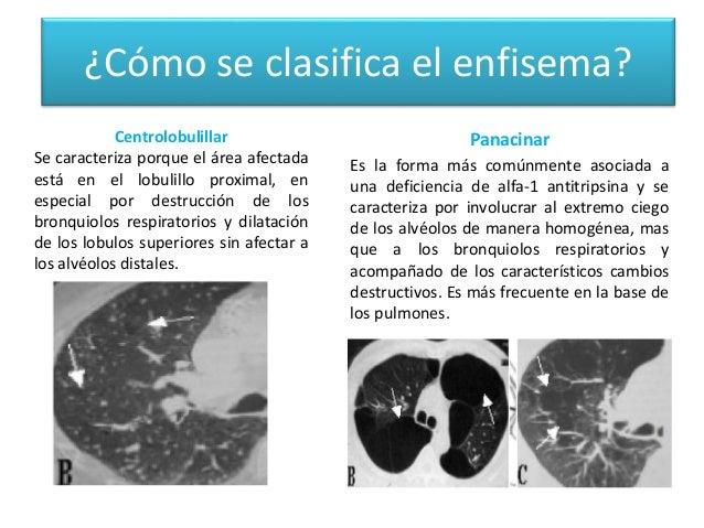 Enfermedades del sistema respiratorio - Como eliminar el humo del tabaco en una habitacion ...