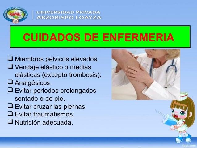 Las medicinas de la várice varicosa