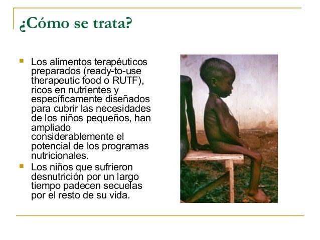 ¿Cómo se trata?   Los alimentos terapéuticos    preparados (ready-to-use    therapeutic food o RUTF),    ricos en nutrien...