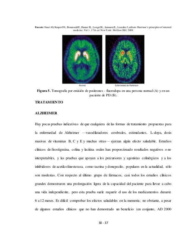 Enfermedades demenciales (alzheimer y parkinson)