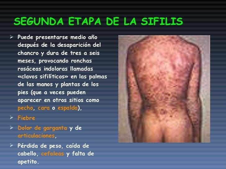 Las clínicas del aumento del pecho en moskve