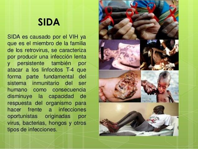 SIDA SIDA es causado por el VIH ya que es el miembro de la familia de los retrovirus, se caracteriza por producir una infe...