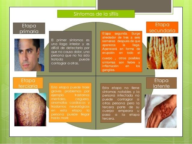 Síntomas de la sífilis Etapa primaria Etapa secundaria Etapa latente Etapa terciaria El primer síntomas es una llaga inter...