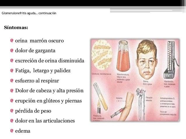 El examen del paciente de la osteocondrosis de la columna vertebral