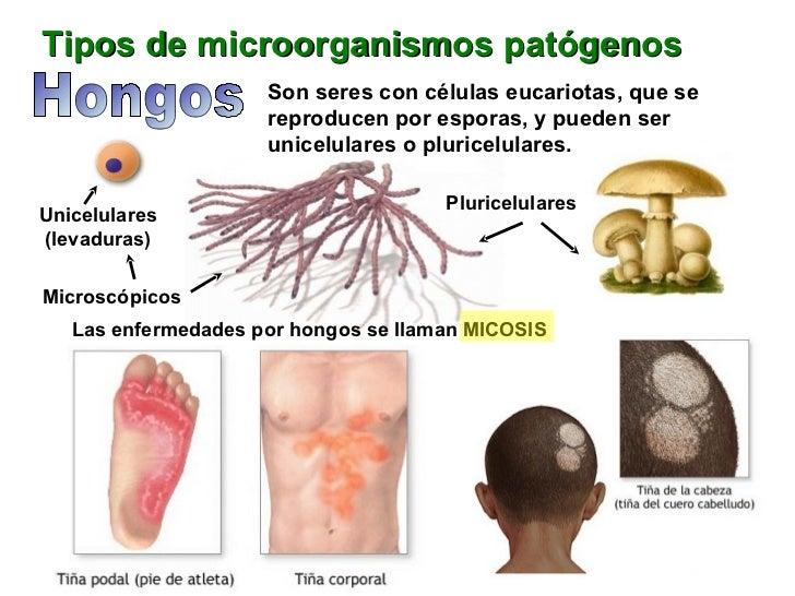 El hongo interior en los pies
