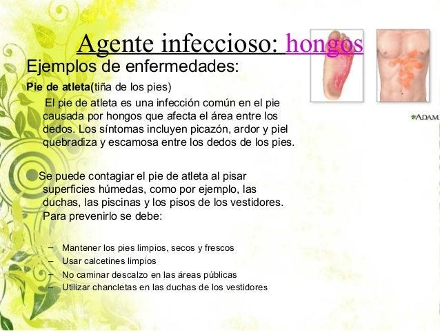 Enfermedades infecciosas for Piscina hongos genitales