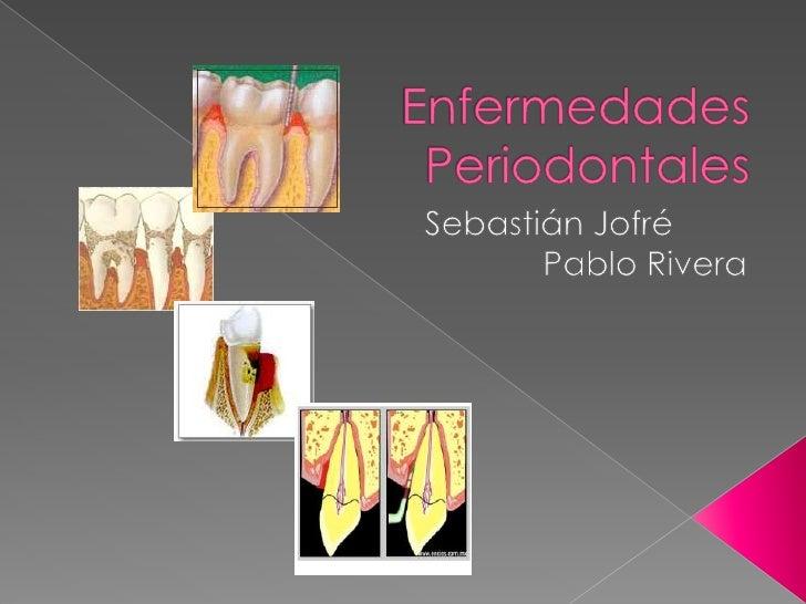 Enfermedades Periodontales<br />Sebastián JofréPablo Rivera<br />