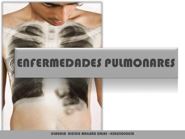 ENFERMEDADES PULMONARES<br />CLAUDIA  NICOLE MAGAÑA ORIAS –KINESIOLOGÍA<br />