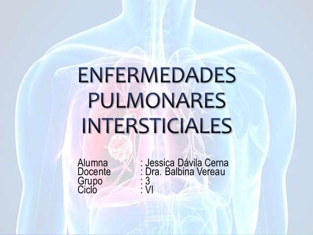 Alumna : Jessica Dávila Cerna Docente : Dra. Balbina Vereau Grupo : 3 Ciclo : VI