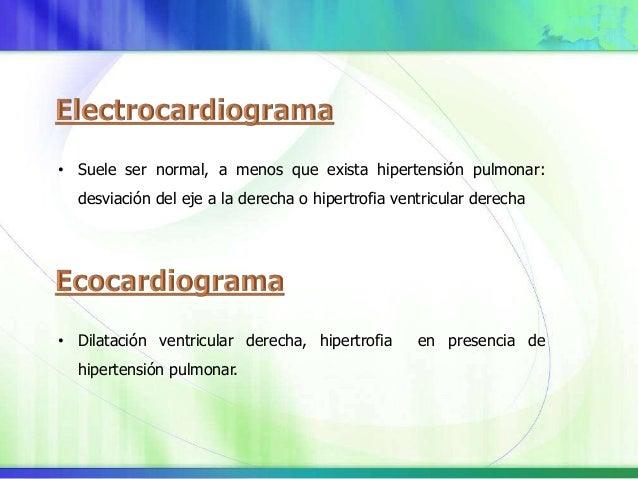 Patrón retículo-nodular