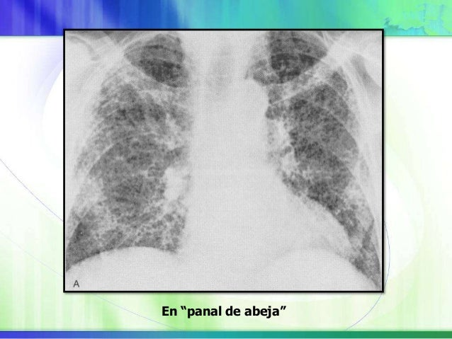 Espirometría y volúmenes pulmonares Capacidad de difusión Gases en sangre arterial - Permite evaluar la magnitud del probl...