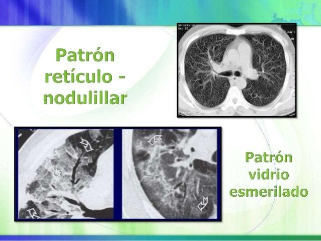 La FPI se define como una neumonía intersticial fibrosante crónica, limitada al pulmón, de causa desconocida, que afecta g...
