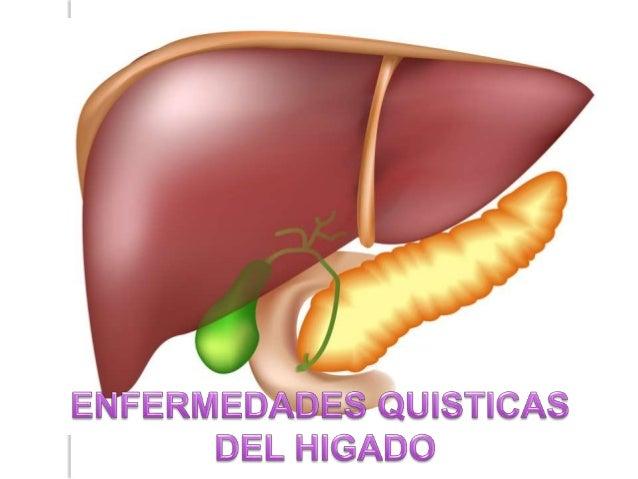 patologia de higado cmn 20 de noviembre