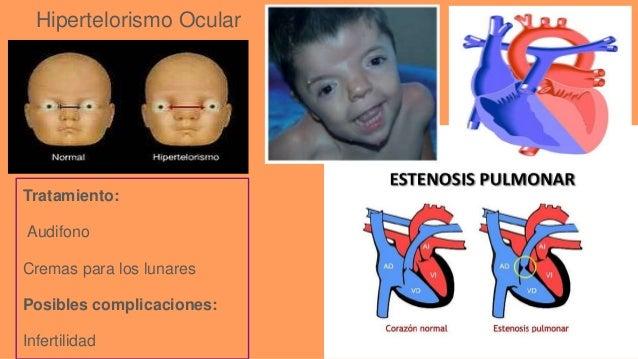 Enfermedades Raras Enfermedades raras cc