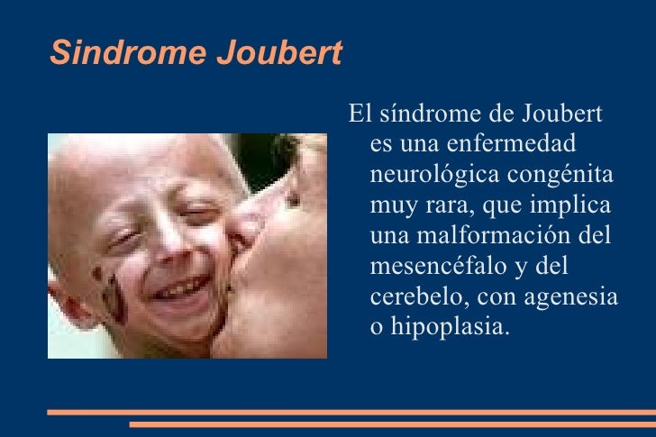 SINDROME DE JOUBERT EPUB DOWNLOAD