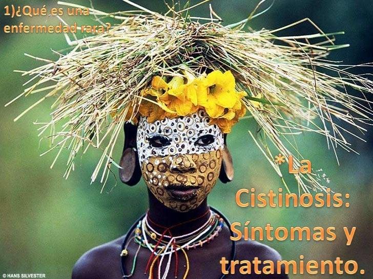 Enfermedades raras de áfrica. Slide 2