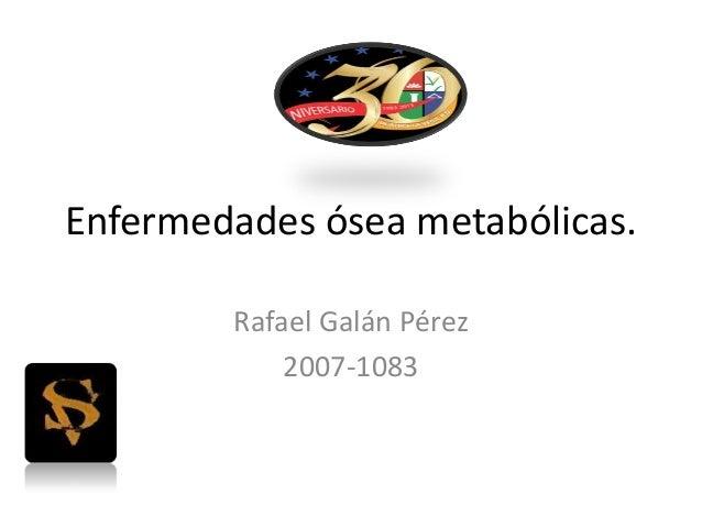 Enfermedades ósea metabólicas. Rafael Galán Pérez 2007-1083