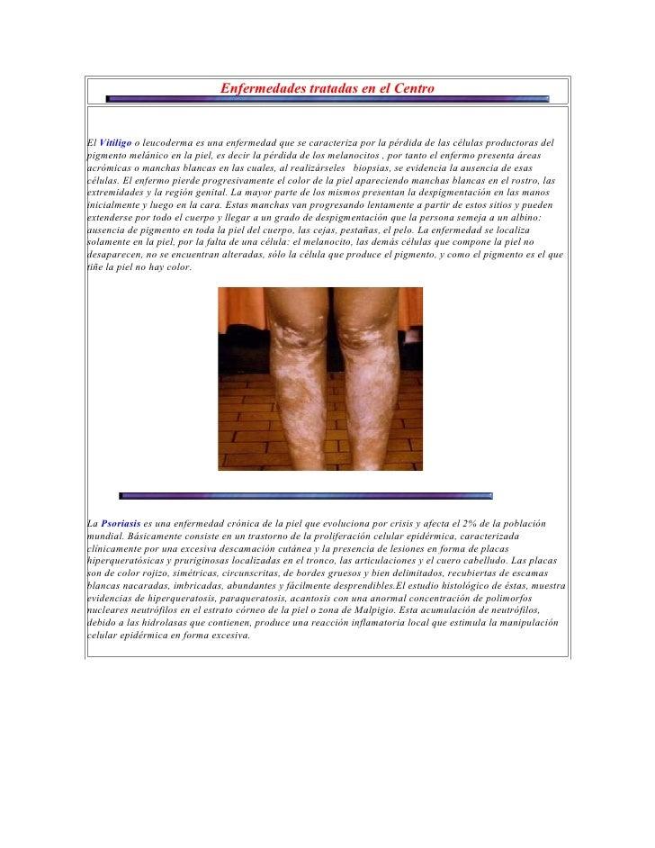 Enfermedades tratadas en el CentroEl Vitiligo o leucoderma es una enfermedad que se caracteriza por la pérdida de las célu...
