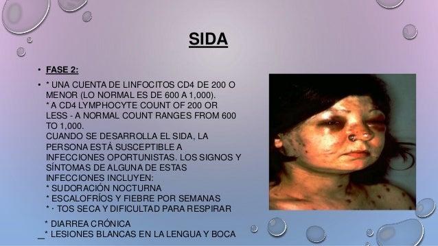 • FASE 2: • * UNA CUENTA DE LINFOCITOS CD4 DE 200 O MENOR (LO NORMAL ES DE 600 A 1,000). * A CD4 LYMPHOCYTE COUNT OF 200 O...