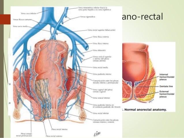 Enfermedad hemorroidal