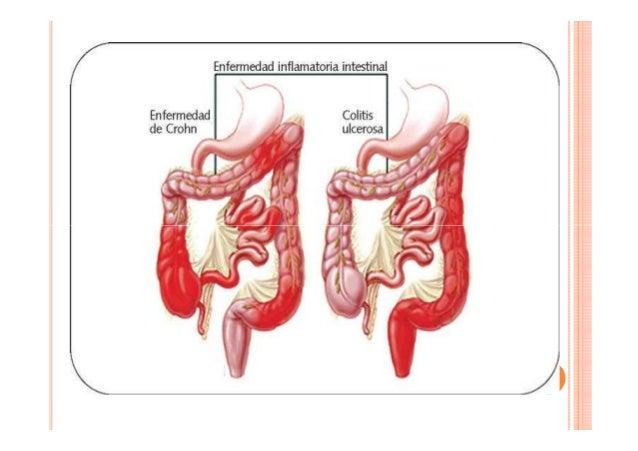 anti inflammatoire steroidien indications