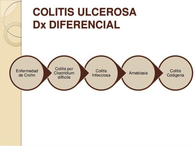 COLITIS ULCEROSA Dx DIFERENCIAL  Enfermedad de Crohn  Colitis por Clostridium difficile  Colitis Infecciosa  Amebiasis  Co...