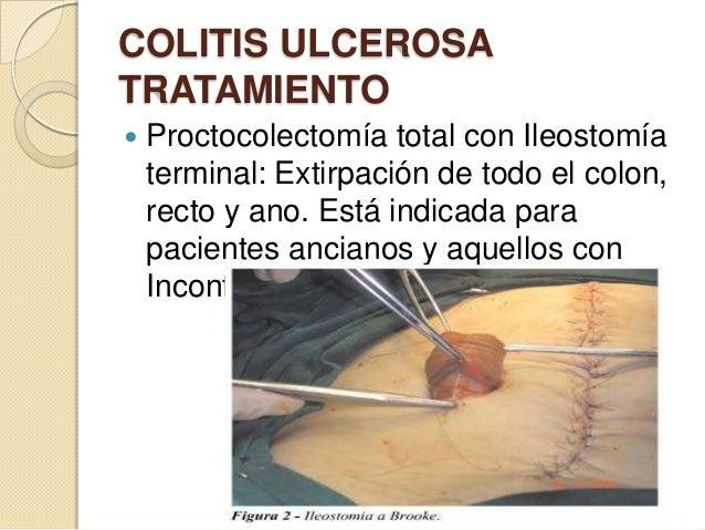 COLITIS ULCEROSA TRATAMIENTO   Proctocolectomía total con Ileostomía terminal: Extirpación de todo el colon, recto y ano....