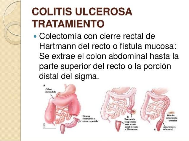 COLITIS ULCEROSA TRATAMIENTO   Colectomía con cierre rectal de Hartmann del recto o fístula mucosa: Se extrae el colon ab...
