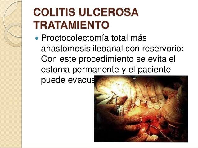 COLITIS ULCEROSA TRATAMIENTO   Proctocolectomía total más anastomosis ileoanal con reservorio: Con este procedimiento se ...