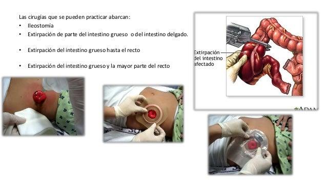 MORFOLOGÍA • La enfermedad activa denota una destrucción inflamatoria continuada de la mucosa, con hiperemia macroscópica,...