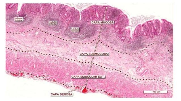 • Distribución de las lesiones • Expresión morfológica