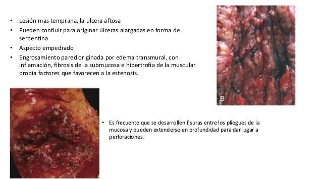 Manifestaciones Extraintestinales • Uveitis • Poliartritis migratoria • Sacroilitis • Espondilitis aquilosante • Acropaqui...