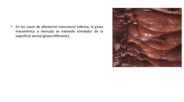Diagnostico Los exámenes para diagnosticar la enfermedad de Crohn abarcan: • Colonoscopia o sigmoidoscopia • Tomografía co...