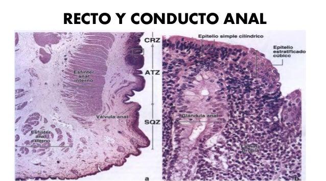• Genetica : NOD2- ATGI – 6LI • Respuesta inmunitaria de la mucosa: activación inmunidad de la mucosa- supresión de inmuno...