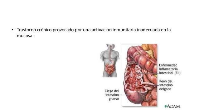 Enfermedad de Crohn (enteritis regional)