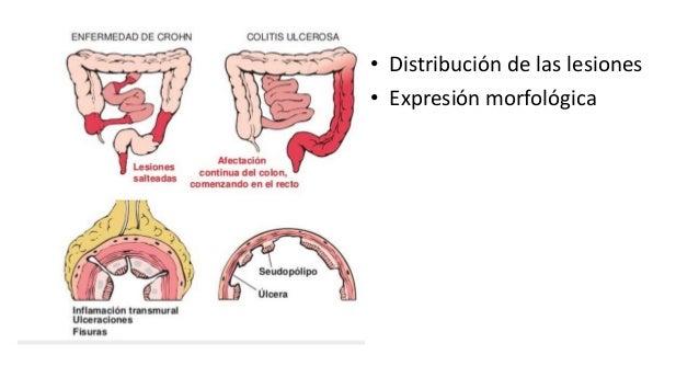 • Puede afectar a cualquier área del tubo digestivo