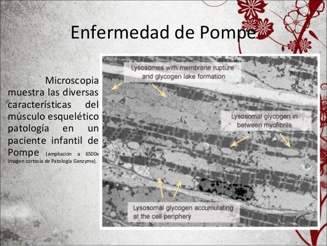 Enfermedad de Pompe • Almacenamiento de glicógeno lisosomal en la E. de Pompe • Microscopía ElectrónicaTrozo de músculo es...