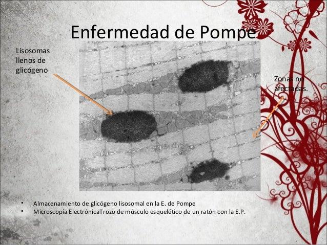 • A) Etapa 1 o 2 – La mayoria de la celulas estan llena de miofibrillas intactas con su glicogeno lisosmal. • B) fase 3 o ...