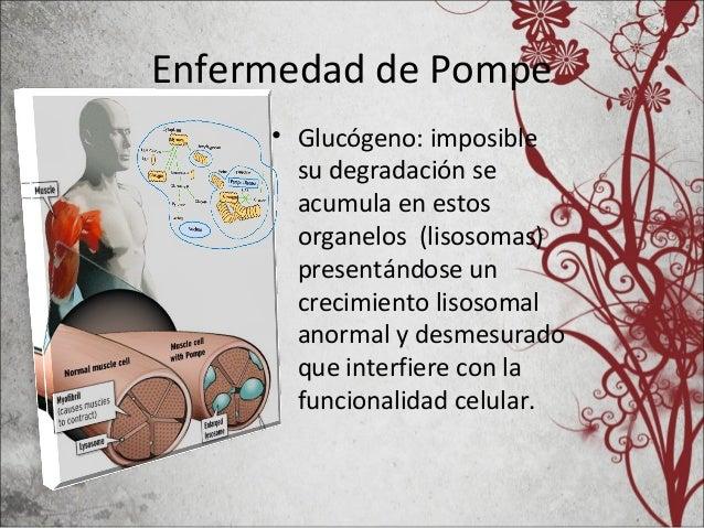 Enfermedad de Pompe • Glucógeno: imposible su degradación se acumula en estos organelos (lisosomas) presentándose un creci...