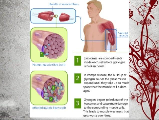 Enfermedad de Pompe • El fallo de los músculos respiratorios es una causa frecuente de mortalidad, tanto en la forma juven...