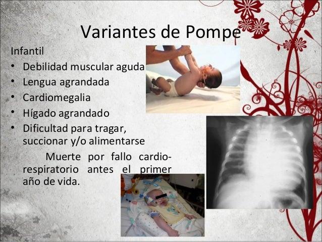 Corazón de un niño de 9 meses de edad que murió por fallo congestivo.