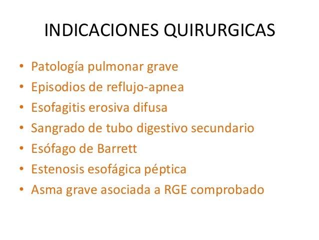 Enfermedad por reflujo gastroesofagico- Dr Ulises Reyes Gomez