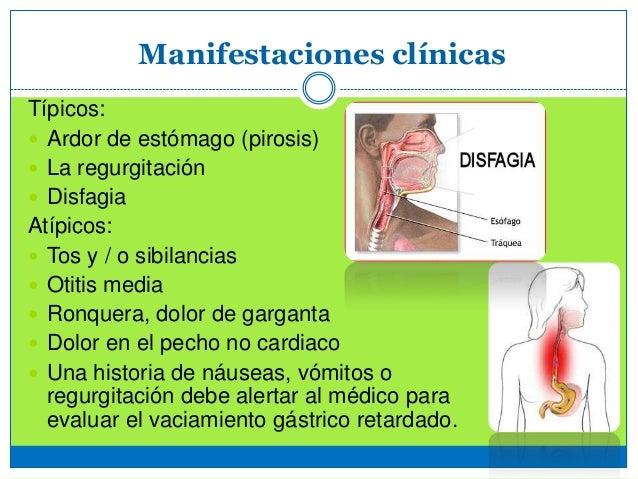 Enfermedad por reflujo gastroesof gico up med - Alimentos prohibidos para la hernia de hiato ...