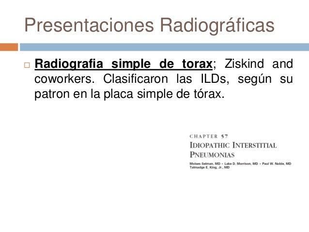 Manifestaciones radiográficas
